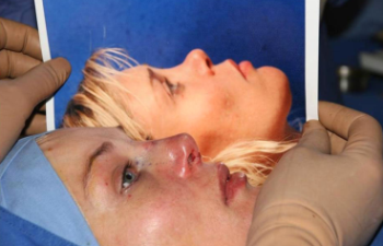 The result of surgery to correct a saddle depression – an attractive nose that complements the shape of the face.