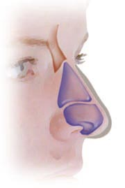 Side View: Notice how the dorsum and the tip of this nose overlap the sides of the triangular shape. This requires re-shaping to achieve the desired aesthetic shape