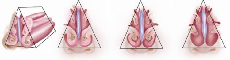 TURBINATE SURGERY ADDRESSES BLOCKAGES OF THE  NOSE