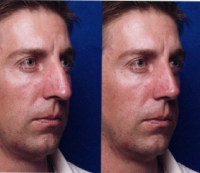 Before & After Nose Surgery 26