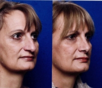 Before & After Nose Surgery 28