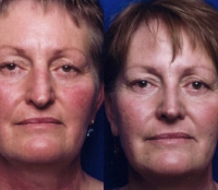 Before & After Nose Surgery 29