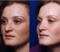Before & After Nose Surgery 32
