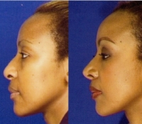 Before & After Nose Surgery 43