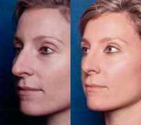 Before & After Nose Surgery 52