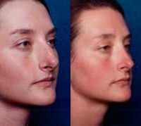 Before & After Nose Surgery 57